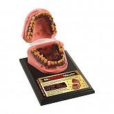 흡연자의 구강모형(Mr. Gross Mouth(79152)